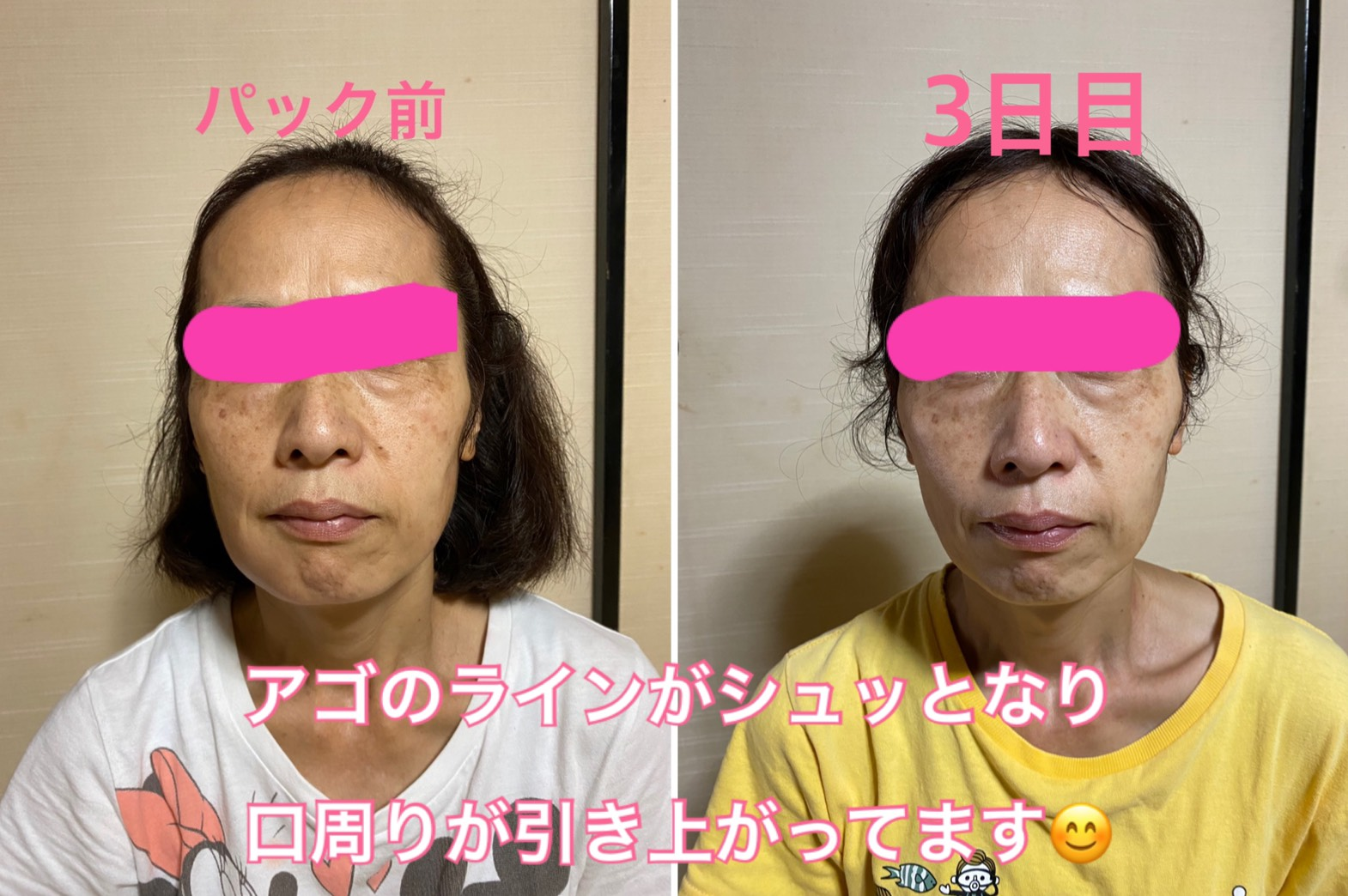 人幹細胞培養液配合フェイスマスク入荷!シワ、シミ、たるみ、マスクでの肌荒れが気になる方!必見